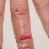 피부가 치유되는 과정 gif