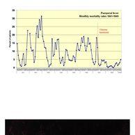 1840년대 임산부 사망률을 낮춘 사람의 최후