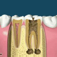 치과 신경치료가 아픈 이유.gif